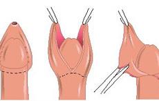 ¿Que es la circuncisión?