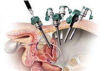 Laparoscopia urológica