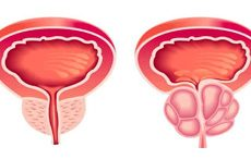 Enfermedades de la Próstata